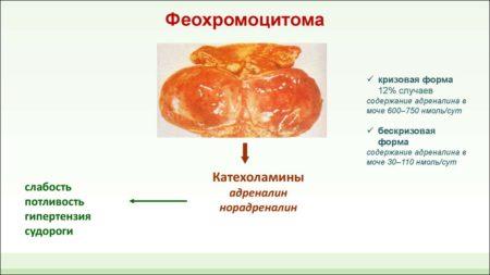 Изображение - Высокое давление не снижается таблетками Ris.-5-5-450x253