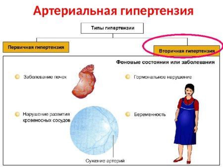 Изображение - Высокое давление не снижается таблетками Ris.-8-4-450x338