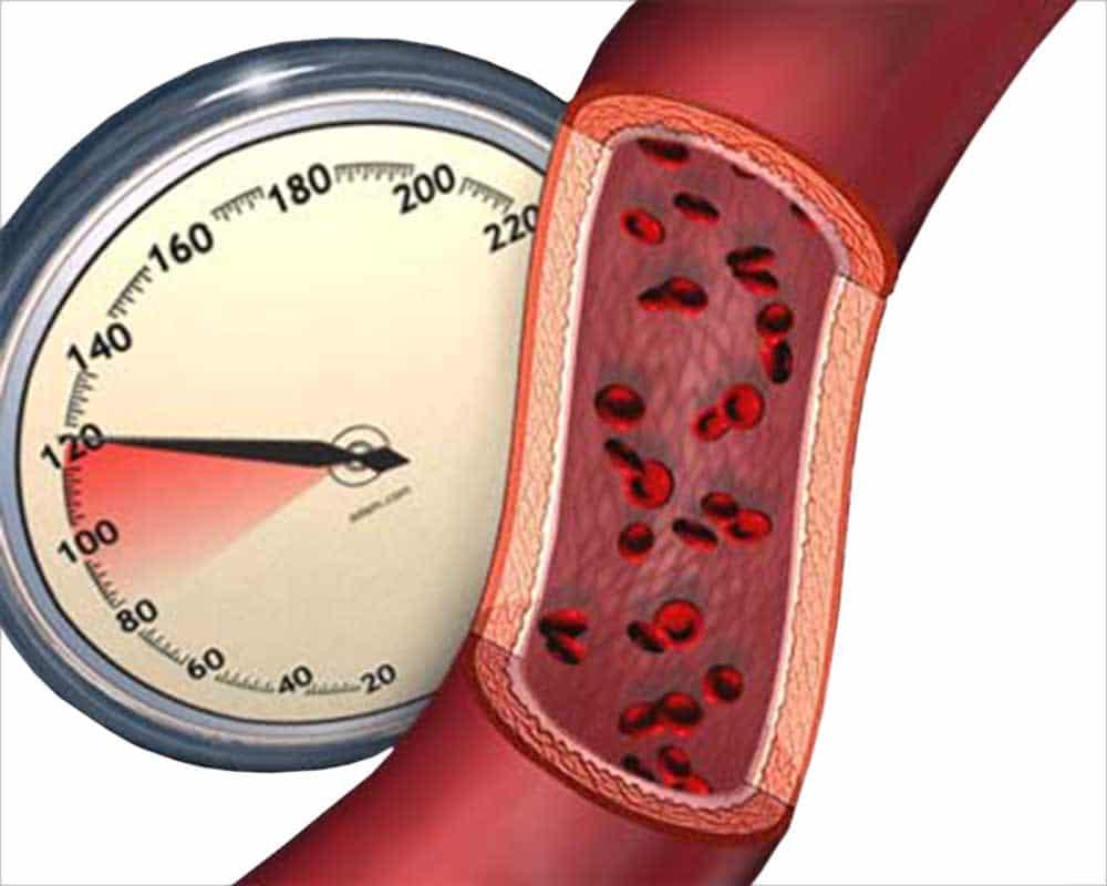 Последствия резкого повышения артериального давления