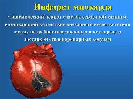 Изображение - Почистить сосуды от артериального давления 4-23-450x337