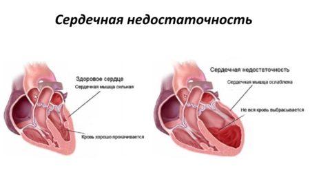 Изображение - Гипертония сердечная недостаточность Ris.2.-450x270