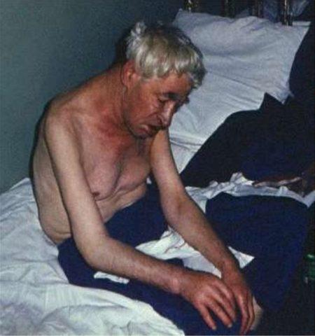 Изображение - Гипертония сердечная недостаточность Ris.4.-450x480