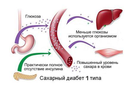 Инсулинозависимый диабет