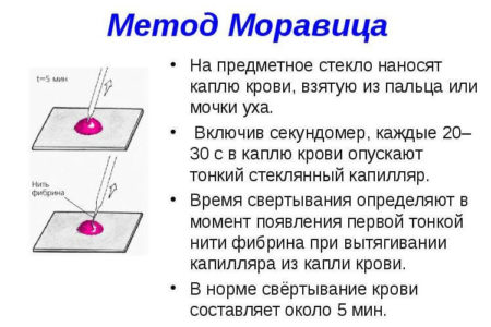 Методика Моравица