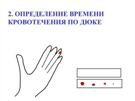 Метод Дуке