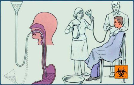 Терапия отравления